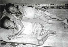 Around 2 million died during the last famine in North Korea.