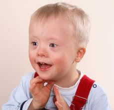 A Baby With Down's Syndrome