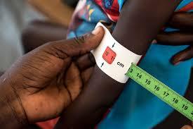 south-sudan-famine-1